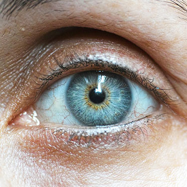 How do you know if you have dry eye?